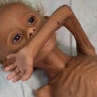 Disastro in Yemen! Con Avaaz si può aiutare